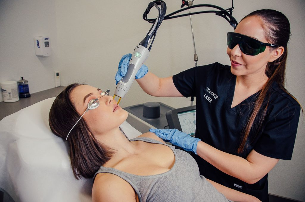 Face laser hair removal in las vegas spa